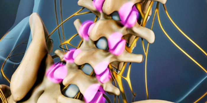Facet Joints Spinal Osteoarthritis